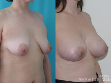 Correction of nipples and areola - photo № 3 before and after
