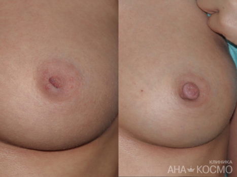 Correction of nipples and areola - photo № 2 before and after