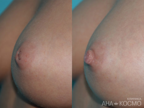 Correction of nipples and areola - photo № 1 before and after