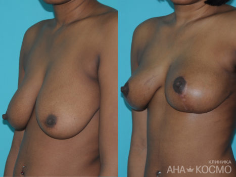 Breast lift, Mastopexy - photo № 2 before and after