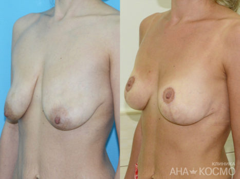 Breast lift, Mastopexy - photo № 3 before and after