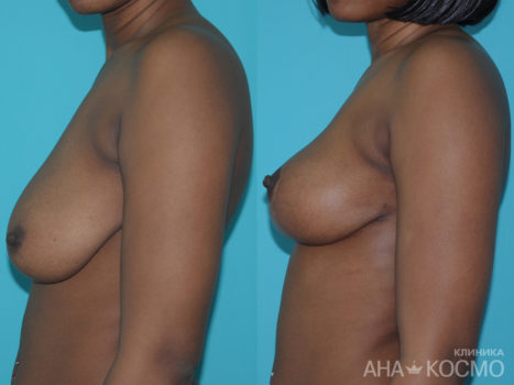 Breast lift, Mastopexy - photo № 1 before and after