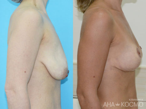 Breast lift, Mastopexy - photo № 4 before and after
