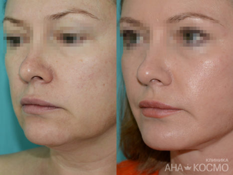 Facelift (thredlifting) - photo № 4 before and after
