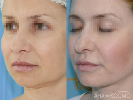 Facelift (thredlifting) - photo № 2 before and after