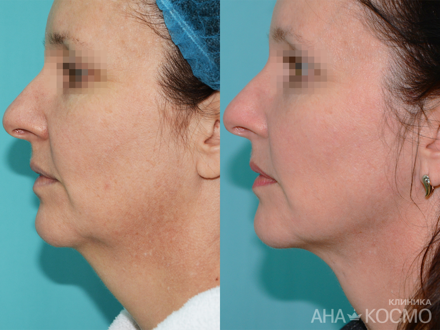 Non-surgical face threading in Ana-Cosmo clinic, photo Before and After