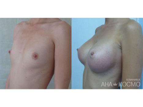 Breast augmentation - photo № 6 before and after