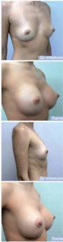 виды имплантов для увеличения груди