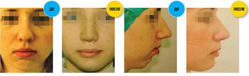 Коррекция носа и подбородка фото до и после