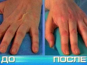 биоревитализация рук - фото до и после