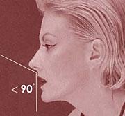 Правильные пропорции носогубного угла к кончику носа