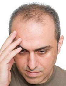 Лечение облысения в домашних условиях