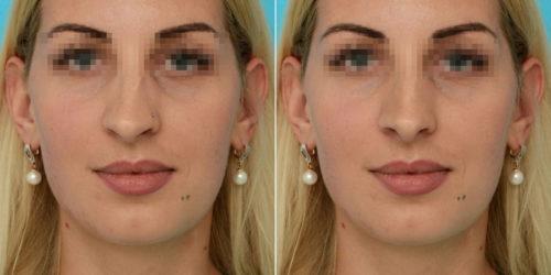 Фото искривленной перегородки носа в анфас: до и после лечения