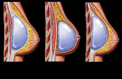 Установка грудных имплантов