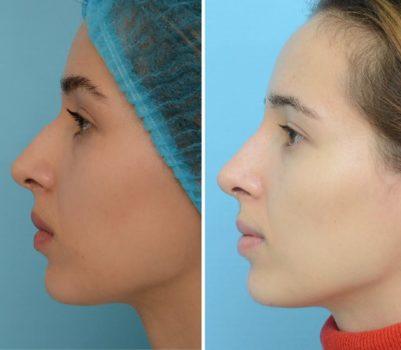 -50% на безопераційну корекцію форми носа за допомогою ін'єкцій препарату.