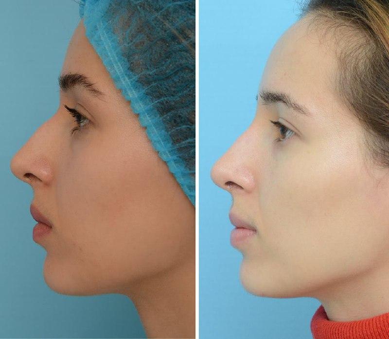 -50% на БЕЗОПЕРАЦИОННУЮ коррекцию формы носа с помощью инъекций препарата