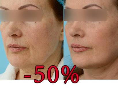 -50% на подтяжку лица MACS lift и блефаропластику!