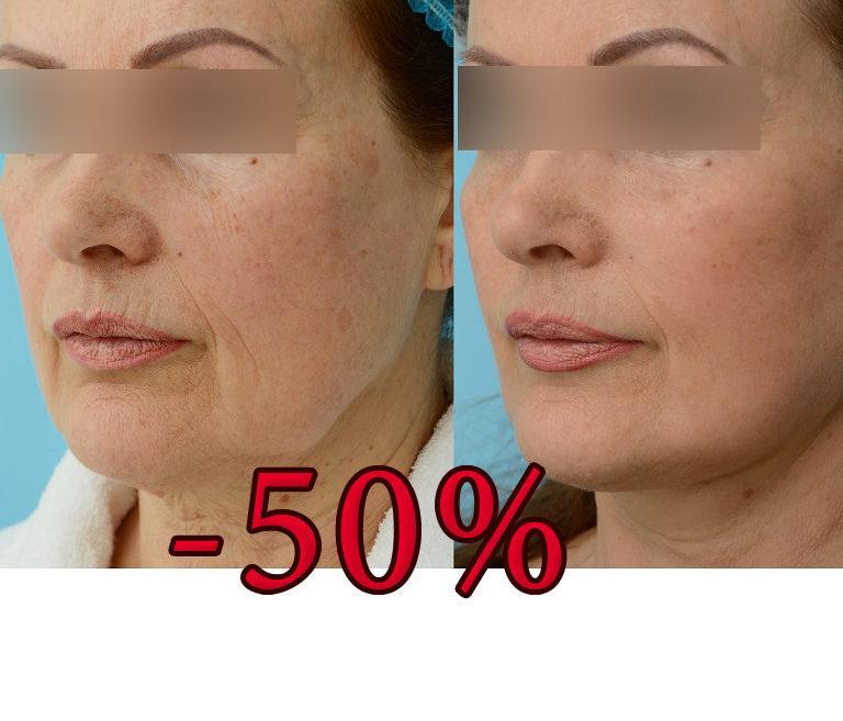 -50% на підтяжку обличчя MACS lift та блефаропластику!