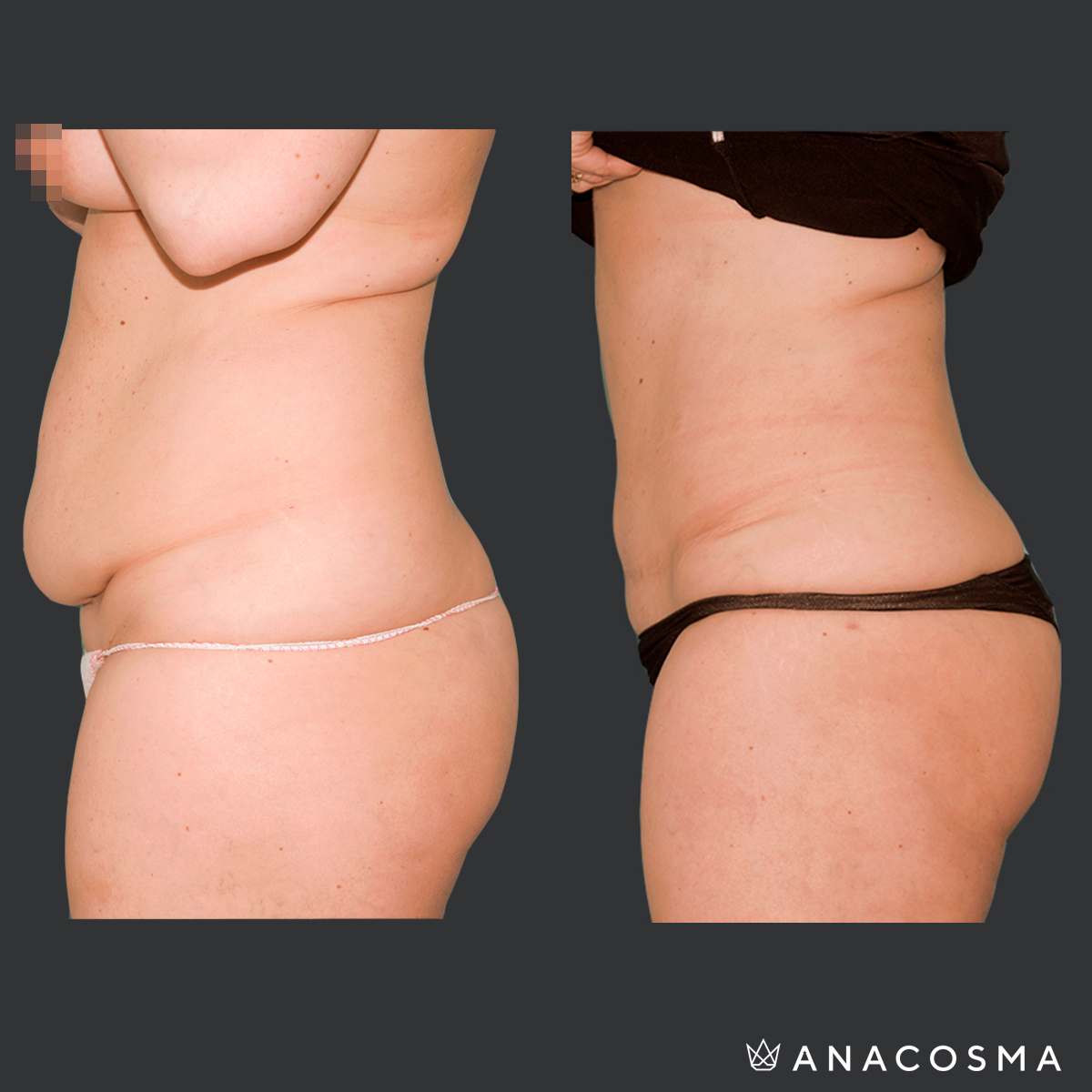 face u pierde in greutate dupa tummy tuck)