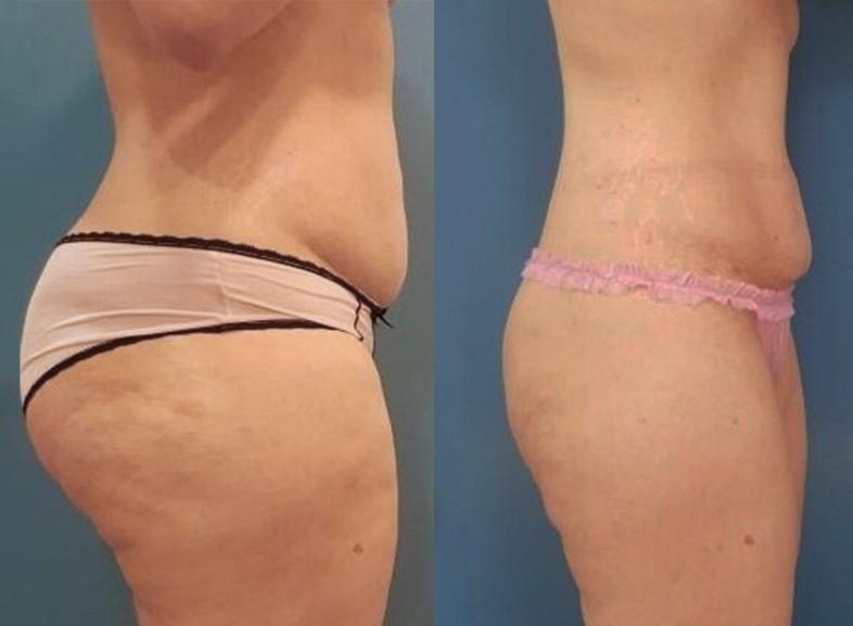 -10% на аппаратное похудение за 1 сеанс криолиполиз Crystal (Франция)