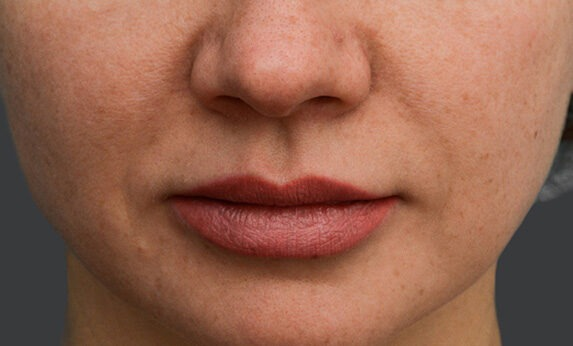 Injectable facial contouring (beauty injections) Before