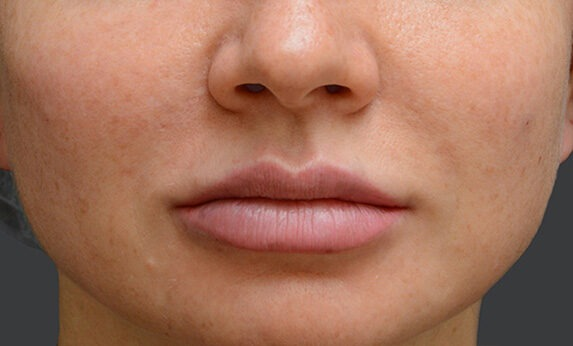 Injectable facial contouring (beauty injections) After