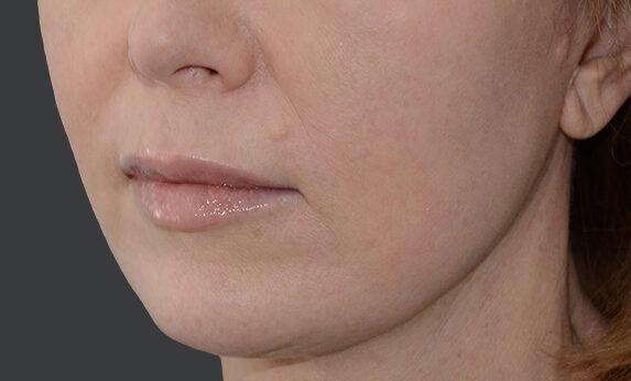 Кругова підтяжка обличчя After