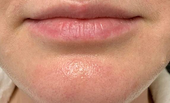 Лазерное омоложение Derma Genesis After
