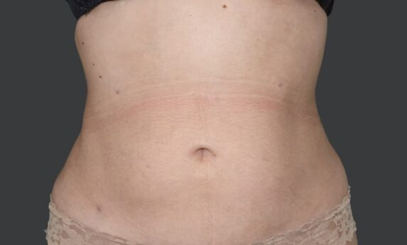 Liposuction Abdomen and Back After