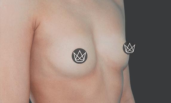 Липофилинг груди Before