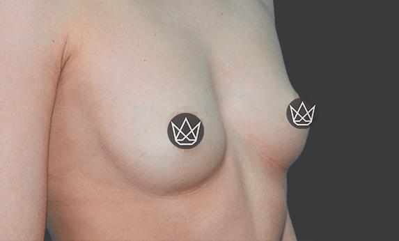 Липофилинг груди After