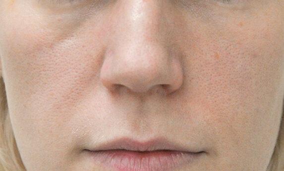 Липофилинг лица и губ Before