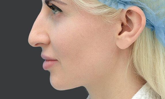 Ринопластика (пластика носа) Before