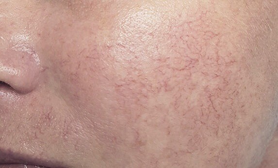 Laser Vascular Removal Before
