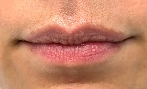 Lip Augmentation (Injections) Before