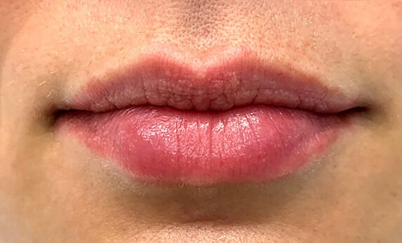 Lip Augmentation (Injections) After