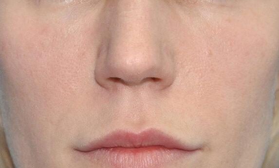 Липофилинг лица и губ After